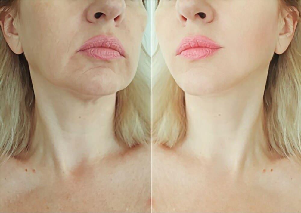 ¿Cómo eliminar las arrugas de una foto de PhotoWorks?