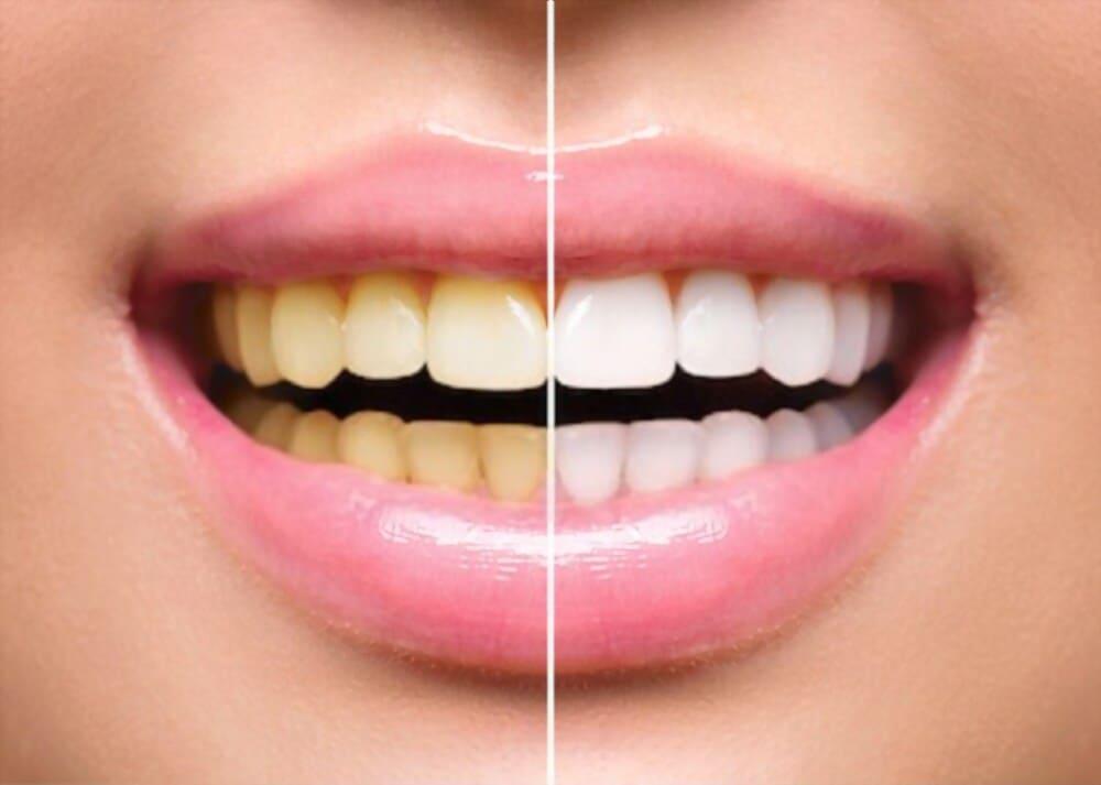 ¿Cómo se blanquean los dientes en las fotos?  - Comunidad de WordPress