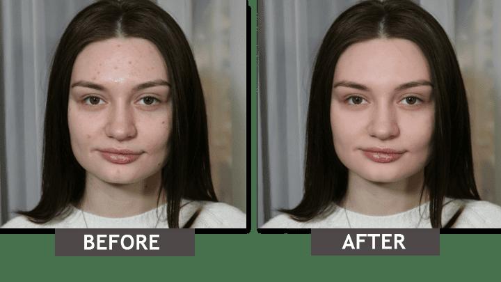 Elimina las imperfecciones de la piel de la foto: Antes-Después